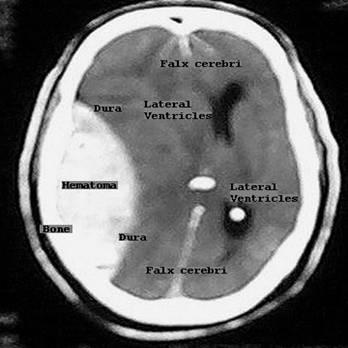 CT Scan otak2